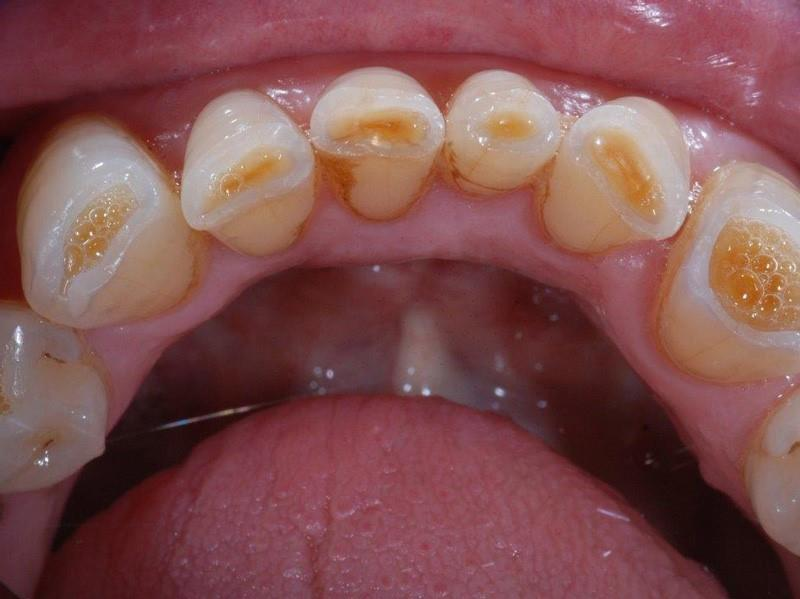 Tooth Wear - Aetiology and Management