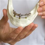 Implant Study Club- Trefoil an affordable implant solution