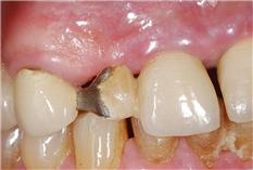 Avoiding Occlusally Related Failure in Restorative Dentistry